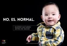 Promueven campaña #NoEsNormal en favor de las personas con síndrome de Down
