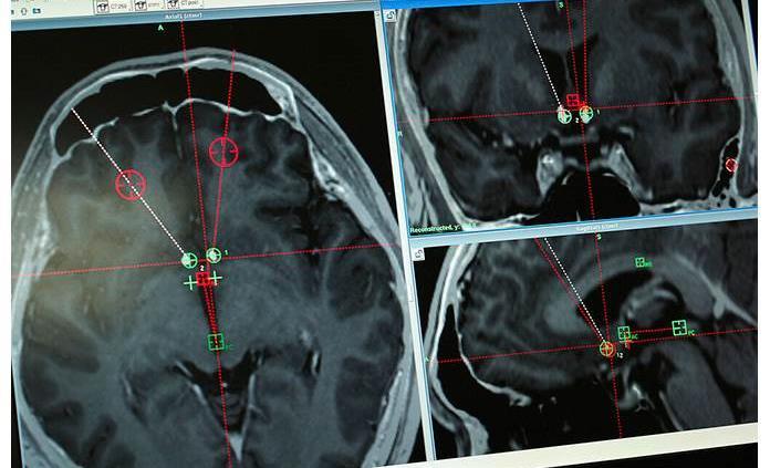 Electrodos en el cerebro podrían curar la drogadicción