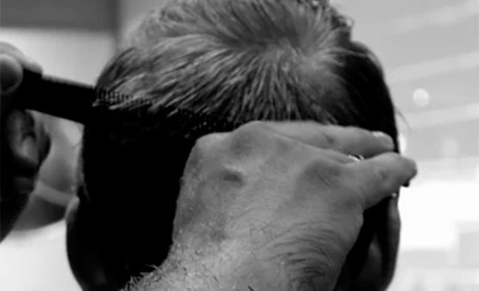 Pérdida de cabello está asociada al estrés y ansiedad