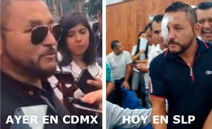 Por supuesta agresión del domingo, acude Mijis con parche al Congreso; a CDMX no lo llevó