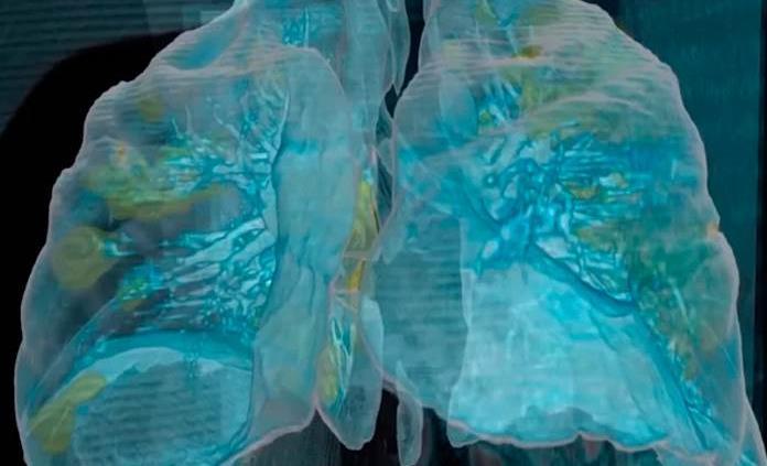 Tras el Covid, las células inmunes enloquecidas ocasionarían daño pulmonar