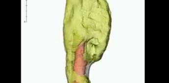 Descubren por primera vez un cáncer de hueso en un dinosaurio