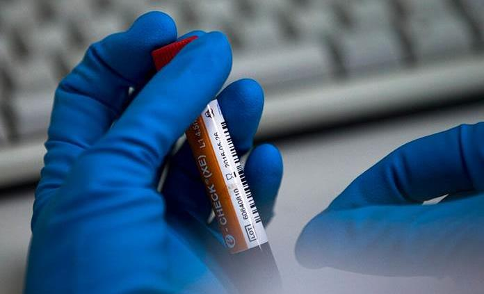 Detectan anticuerpos COVID en sangre y saliva que duran, al menos, tres meses