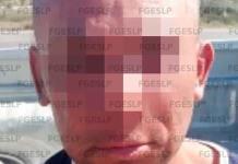Detienen a hombre acusado de herir a su expareja