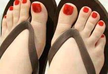 Alertan por aumento de pie de atleta en temporada de calor